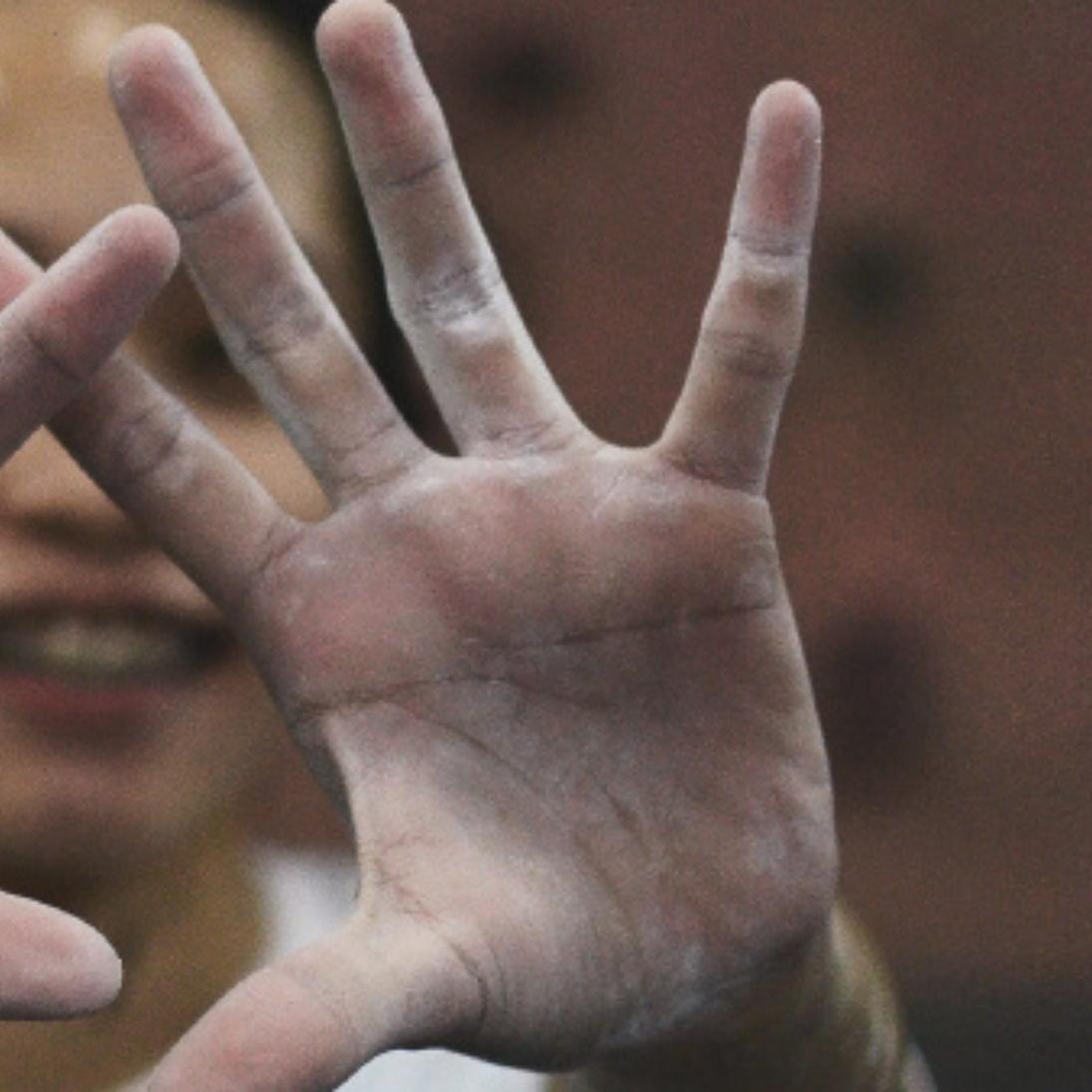 Flossede hænder fyldt med vabler? Sådan plejer og heler du din hud